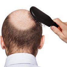 این ماسک گیاهی درمانی معجزهآسا در درمان ریزش و درمان «طاسی سر» است و در درمان سفیدی مو، عفونت پوست سر و شوره و ریزش ابرو و شفافیت موی سر نیز بسیار مؤثر است