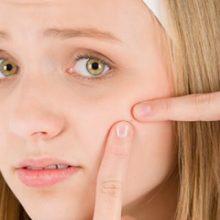 بسیاری از ما تجربه ترکاندن جوش ها را در مناطقی مانند بالای لب، روی چانه و بینی داشتهایم. متخصصان پوست میگویند این کار میتواند مشکلاتی برای سلامت ...