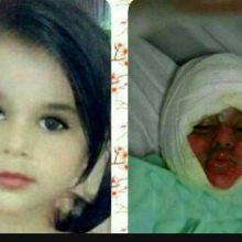 رئیس بیمارستان سوانح و سوختگی طالقانی اهواز آخرین وضعیت دختر سه ساله ای که با سقوط در دیگ خورش نذری دچار سوختگی شده بود را تشریح کرد.