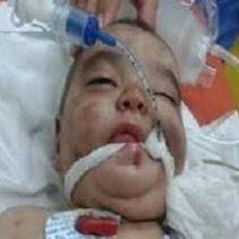دخترک ۲ ساله بندرعباسی که هدف ضربات چاقوی پدر معتادش قرار گرفته، پس از چند عمل جراحی به بخش مراقبتهای ویژه منتقل شده؛ چاقوخوردن دختر ۲ ساله