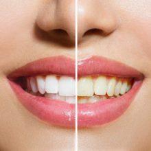 مسواک زدنبه روش صحیح،کشیدن نخ دندانو استفاده از دهان شویه، اصول اولیه برای حفظ سلامت وبهداشت دهان و دندانهاهستند. جرمگیری دندان