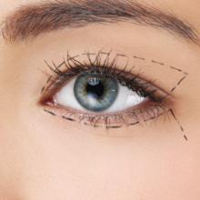 بلفاروپلاستی یکی از اعمال جراحی زیبایی است که برای برداشتن پف پلک ها، اصلاح افتادگی پلک و برداشتن پوست اضافی آنها طراحی شده است و با توجه به تبلیغاتی که توسط افراد، برخی پزشکان