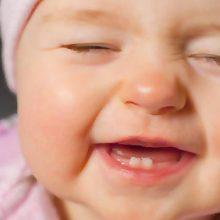 همچنین پوسیدگی دندان نوزادان میتواند درنتیجه قرارگیری دندانها و لثههای نوزاد در معرض هر مایع و غذایی بهجز آب برای مدتی طولانی به وجود آید، ازجمله هنگامی نوزاد
