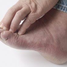 خارش مزمن انگشتان دست و پا میتواند عارضهای آزاردهنده باشد و زندگی روزمره را دچار مشکل کند. برای درمان مناسب این عارضه که میتواند به تنهایی یا همراه با جوش