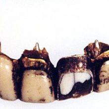 پزشکان فرانسوی با بررسی بقایای دندان و جمجمه آدولف هیتلر به این نتیجه رسیدهاند که او در سال ۱۹۴۵ میلادی بر اثر خوردن سم سیانور و شلیک به سر کشته شده است.