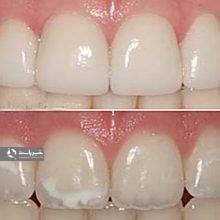 مردم لکههای سفید روی دندان را بهعنوان وضعیتی نامطلوب در نظر میگیرند اما بهندرت نیاز به یافتن دلیلی جدی برای رفتن به دکتر برای این موضوع پیدا میکنند.