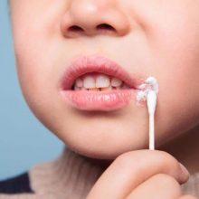 تبخال اغلب با احساس در گوشههای لب یا دهان شروع شده و به مرور تبدیل به سوزش میشود در نهایت برامدگی دردناکی به وجود میآید. در بیشتر مواقع نیاز نیست